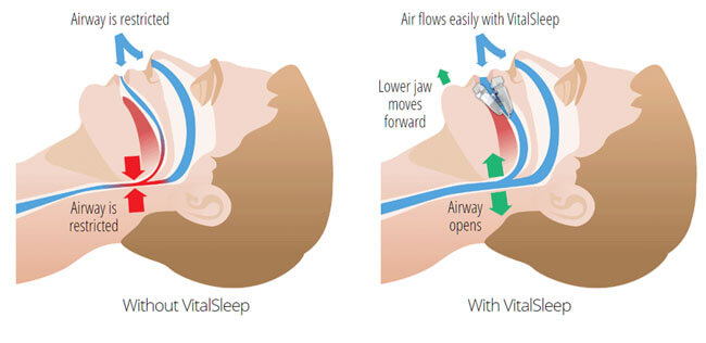 How VitalSleep Works