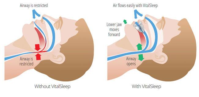 How VitalSleep Works