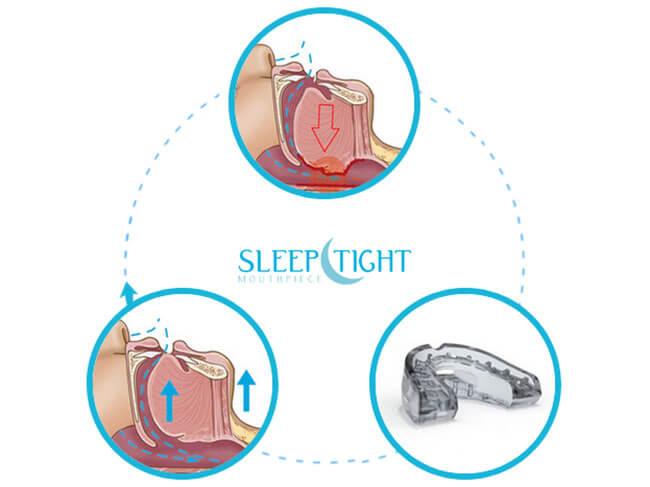 SleepTight how work