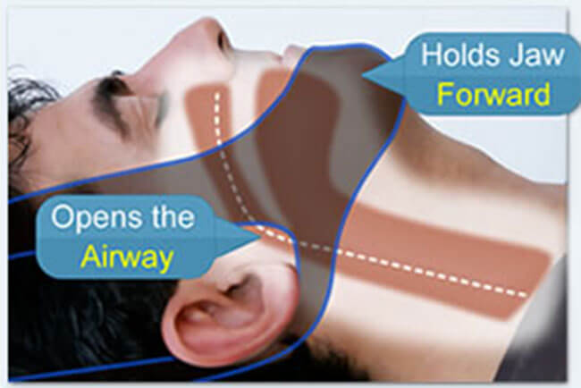 How My Snoring Solution Works