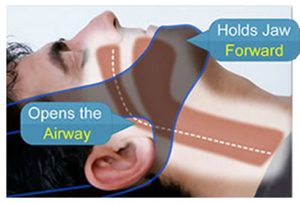 my snoring solution how to wear