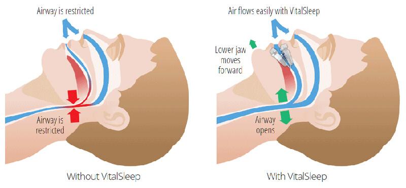 VitalSleep And Sleep Apnea