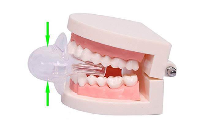 Boyon-Tongue-Retainer how work