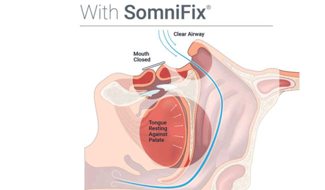 Somnifix Mouth Strips the mouth remains closed during sleep
